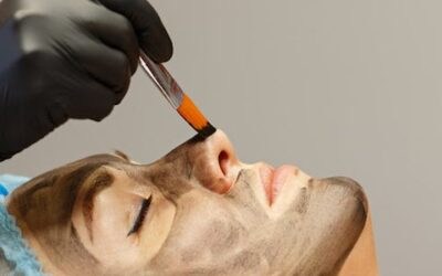 Hollywood Carbon Peel $199 includes Healite.